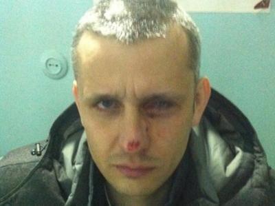 20 января во время штурма на Грушевского Вячеслав Веремий получил травму глаза и частично потерял зрение.