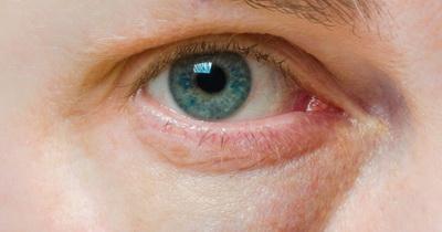 5 привычек, которые разрушают глаза